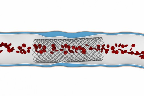 Abbott lands FDA Approval for heart stent