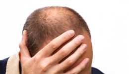 Could your receding hairline be a sign of cancer?