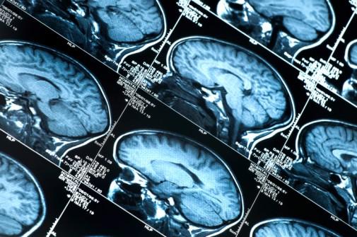 Brain aneurysm: A race to live