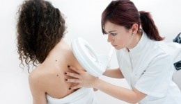 Can skin cancer put you at risk for other cancers?
