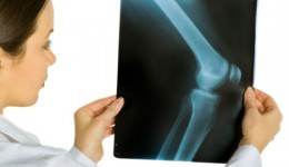 Can knee surgery lead to weight gain?