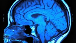 Can big brains cause anorexia?