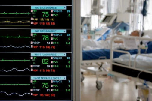 Can long ICU stays cause dementia?