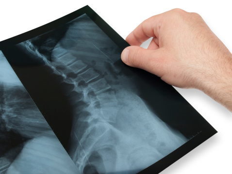 European scoliosis treatment getting attention in U.S.