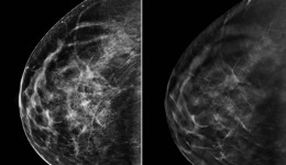 3D mammography proves highly effective in detecting breast cancer