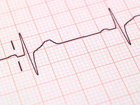 80 percent of heart attacks in men may be preventable