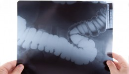 New home test targets colon cancer