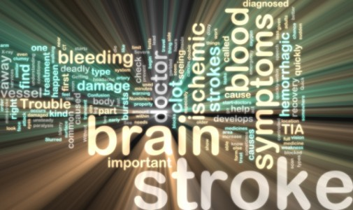 Infographic: Stroke Awareness Month