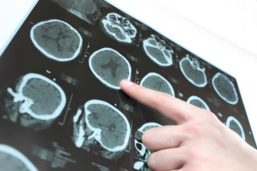 What you may not know about Parkinson's disease
