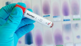 University of Illinois at center of mumps outbreak