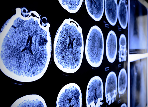 Clinical trials and Alzheimer's disease