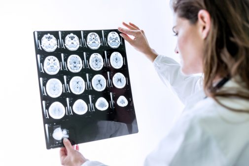 Is there a link between higher education and brain tumors?