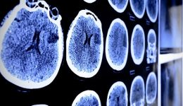 A promising tool in stroke recovery