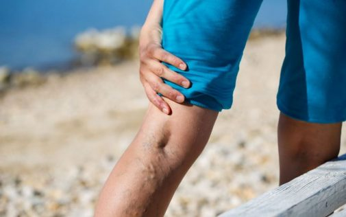 Finding relief from varicose veins