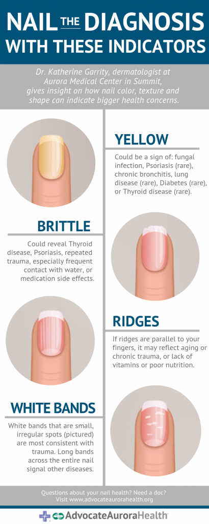 What your fingernails might say about your health | health enews